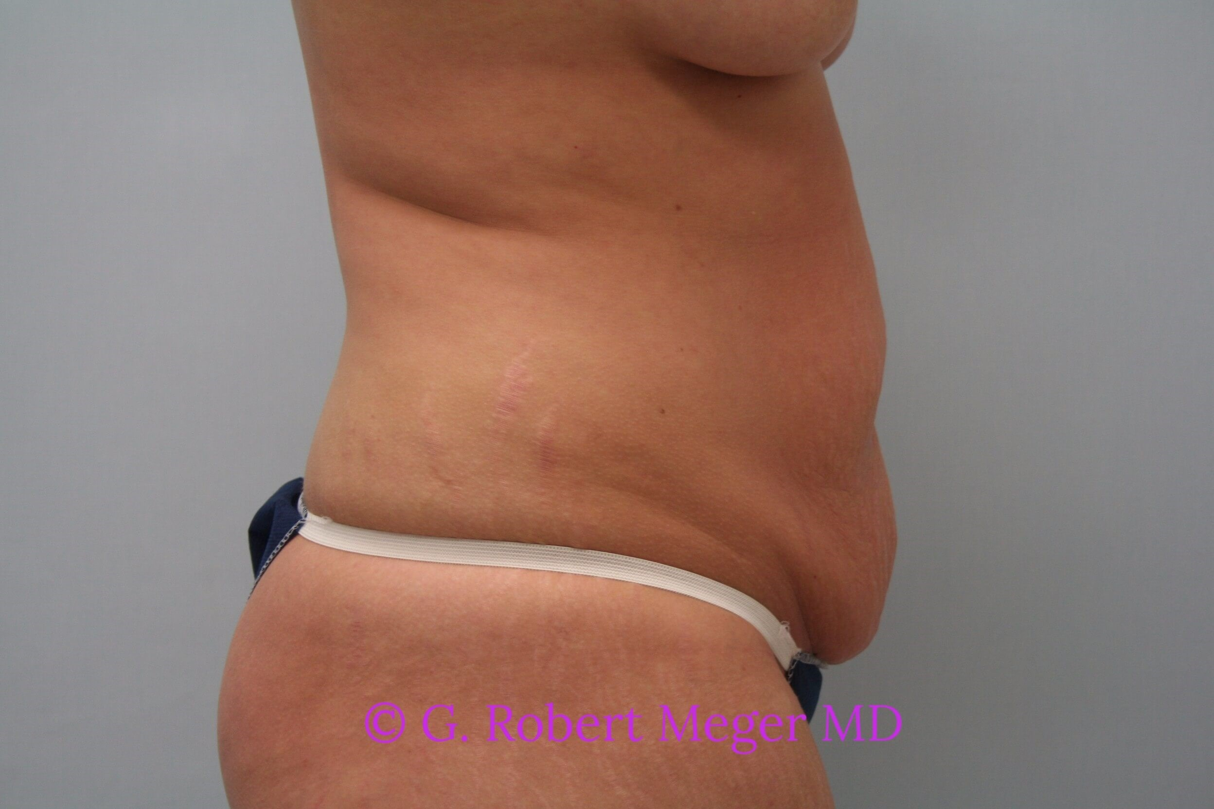 Tummy Tuck Side View Before