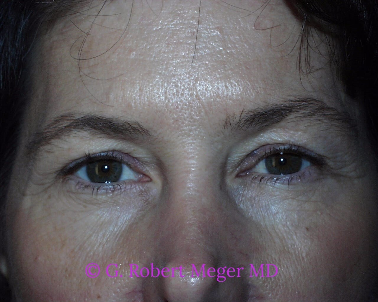 Blepharoplasties Before