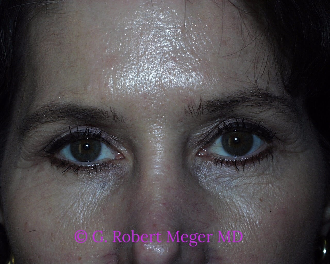 Blepharoplasties After