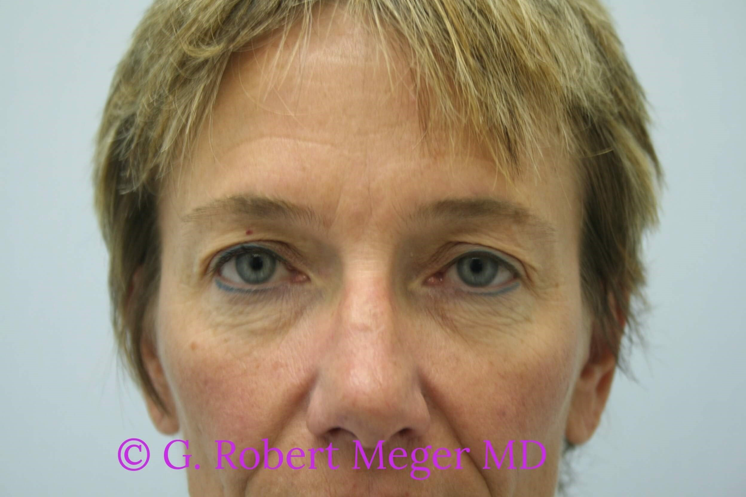 Browlift with Blepharoplasties Before