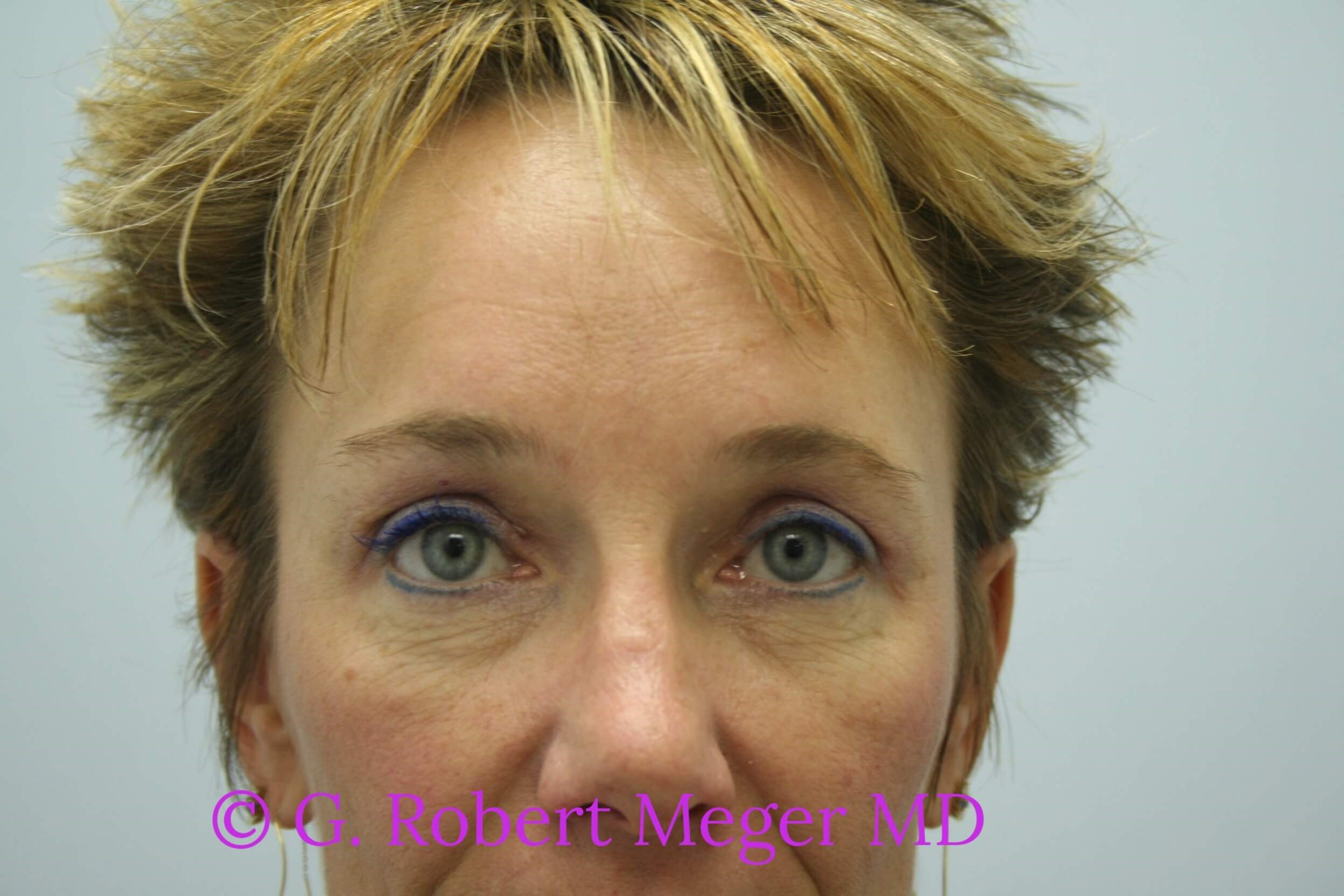 Browlift with Blepharoplasties After