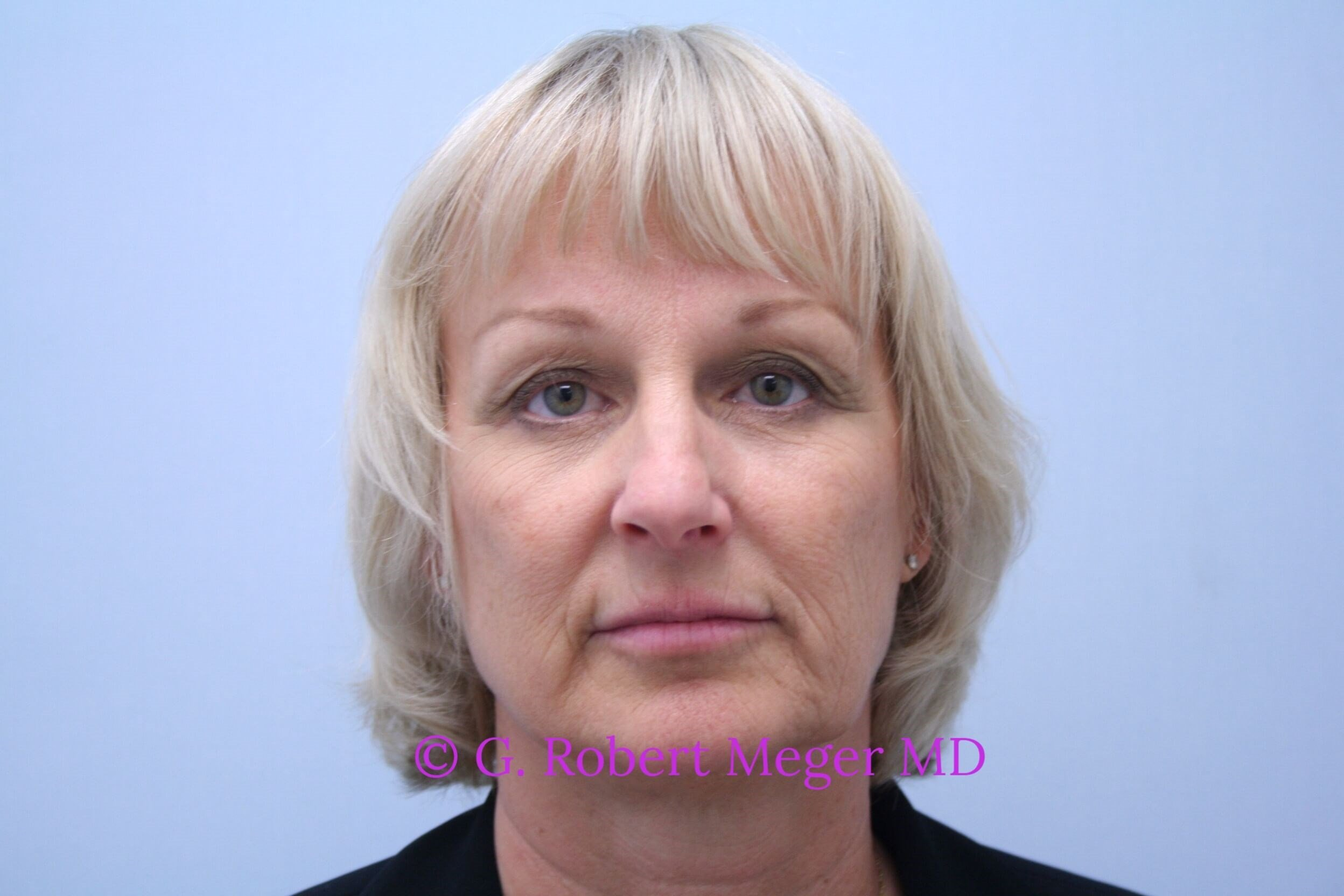 Browlift and Eyelid Lift After