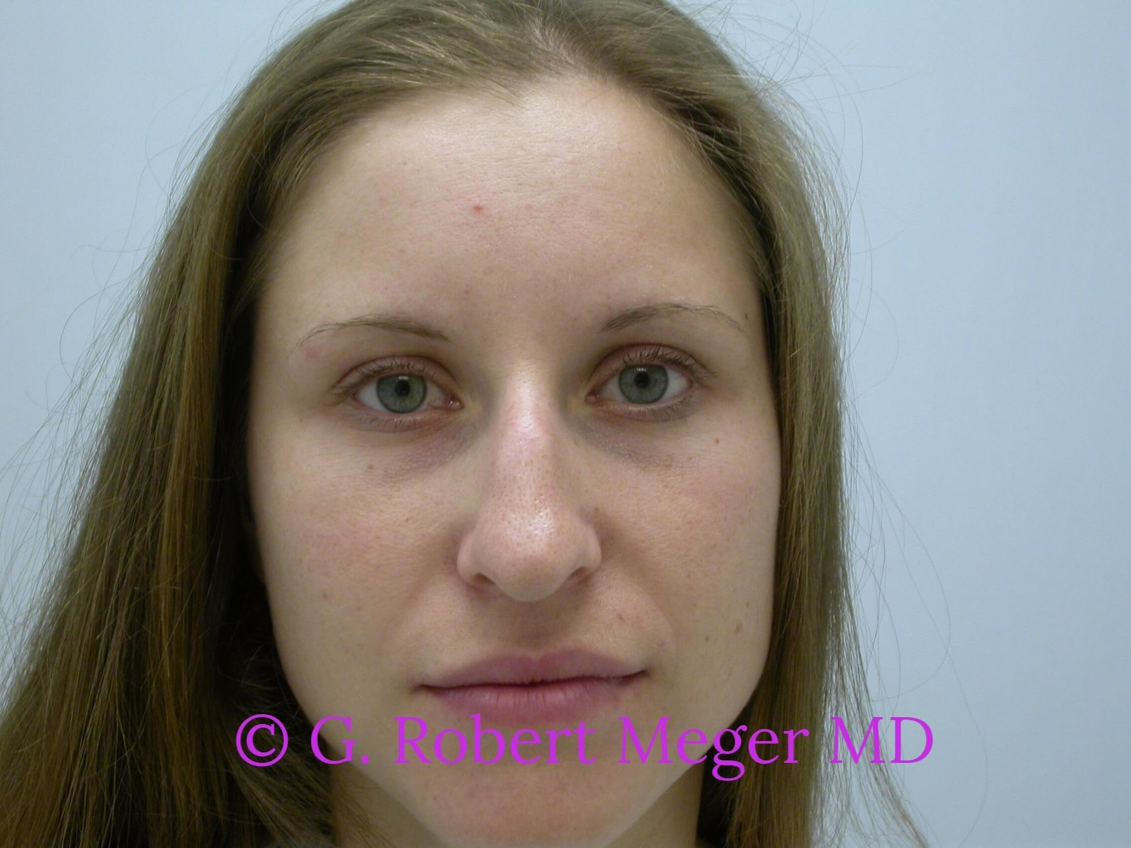 Rhinoplasty Front View Before