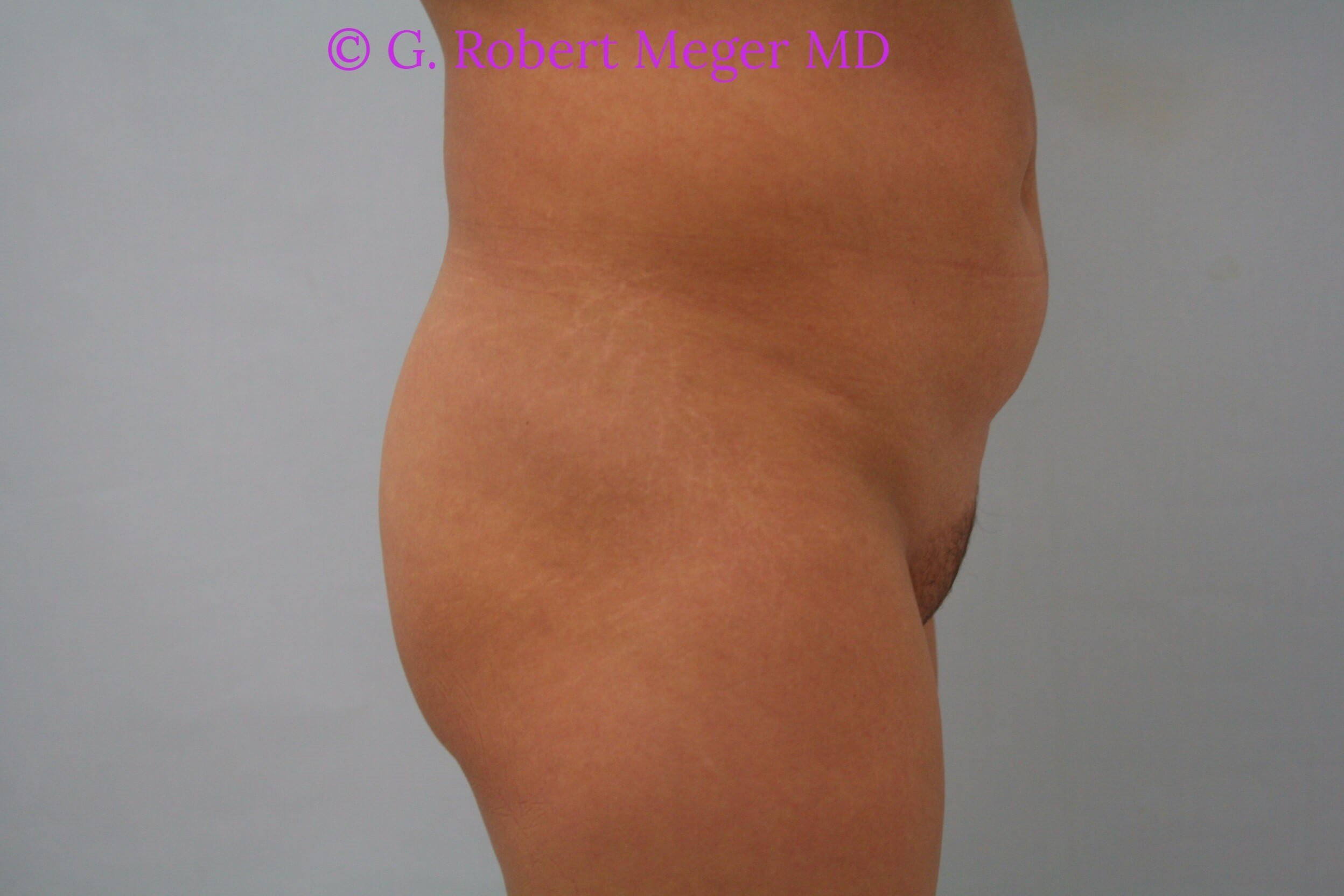 Brazilian Buttlift Side View Before
