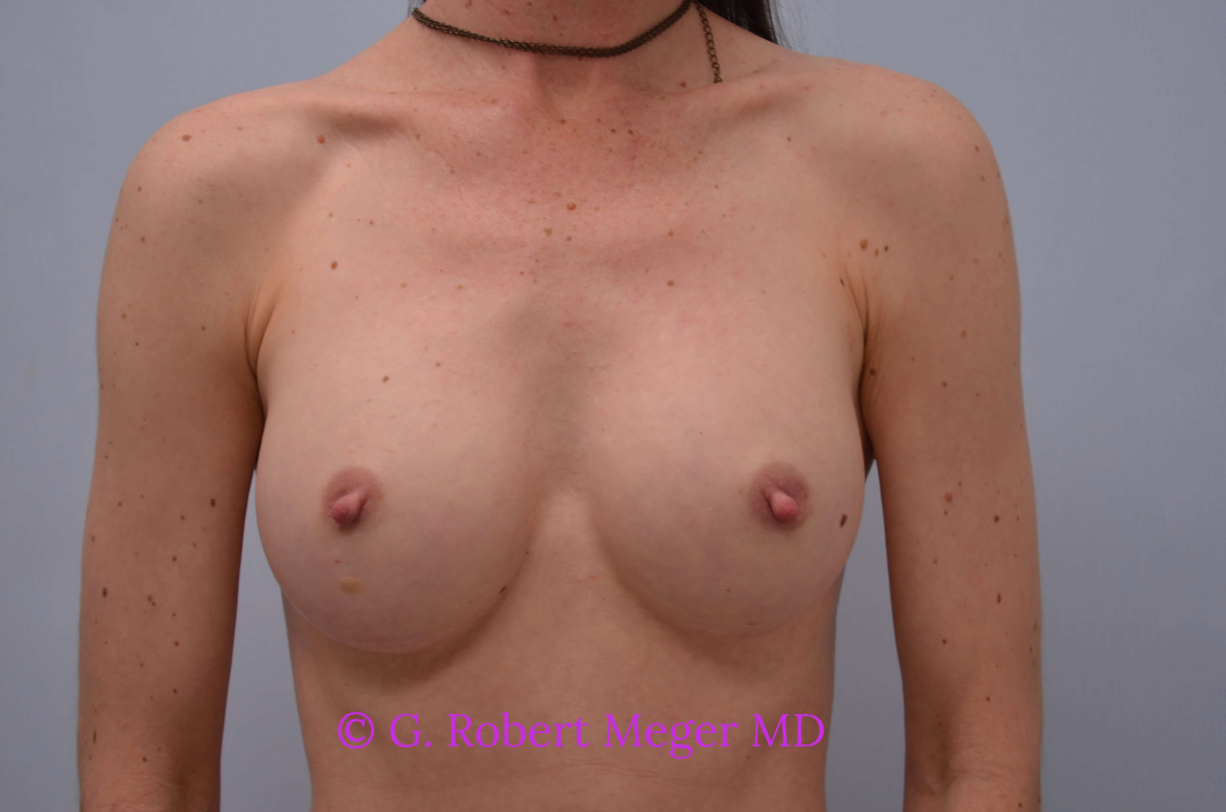 Breast Augmentation Front View After