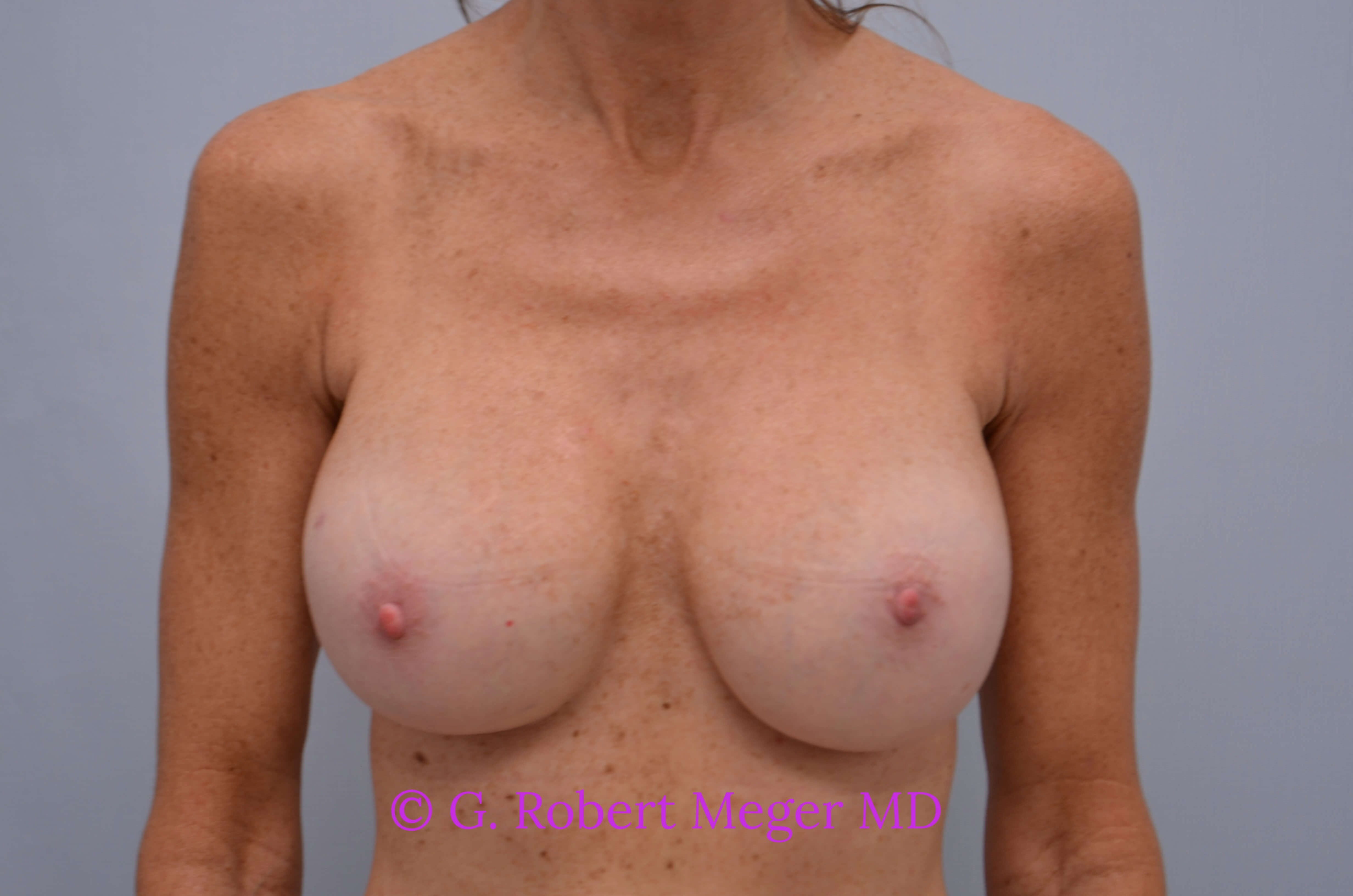 Breast Revision Front View After