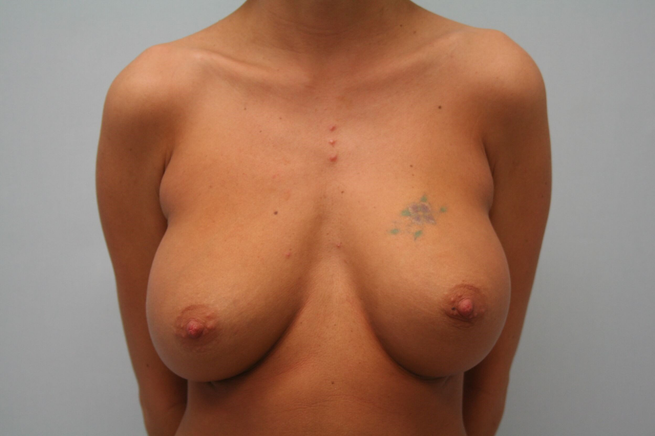 Breast Revision Front View Before