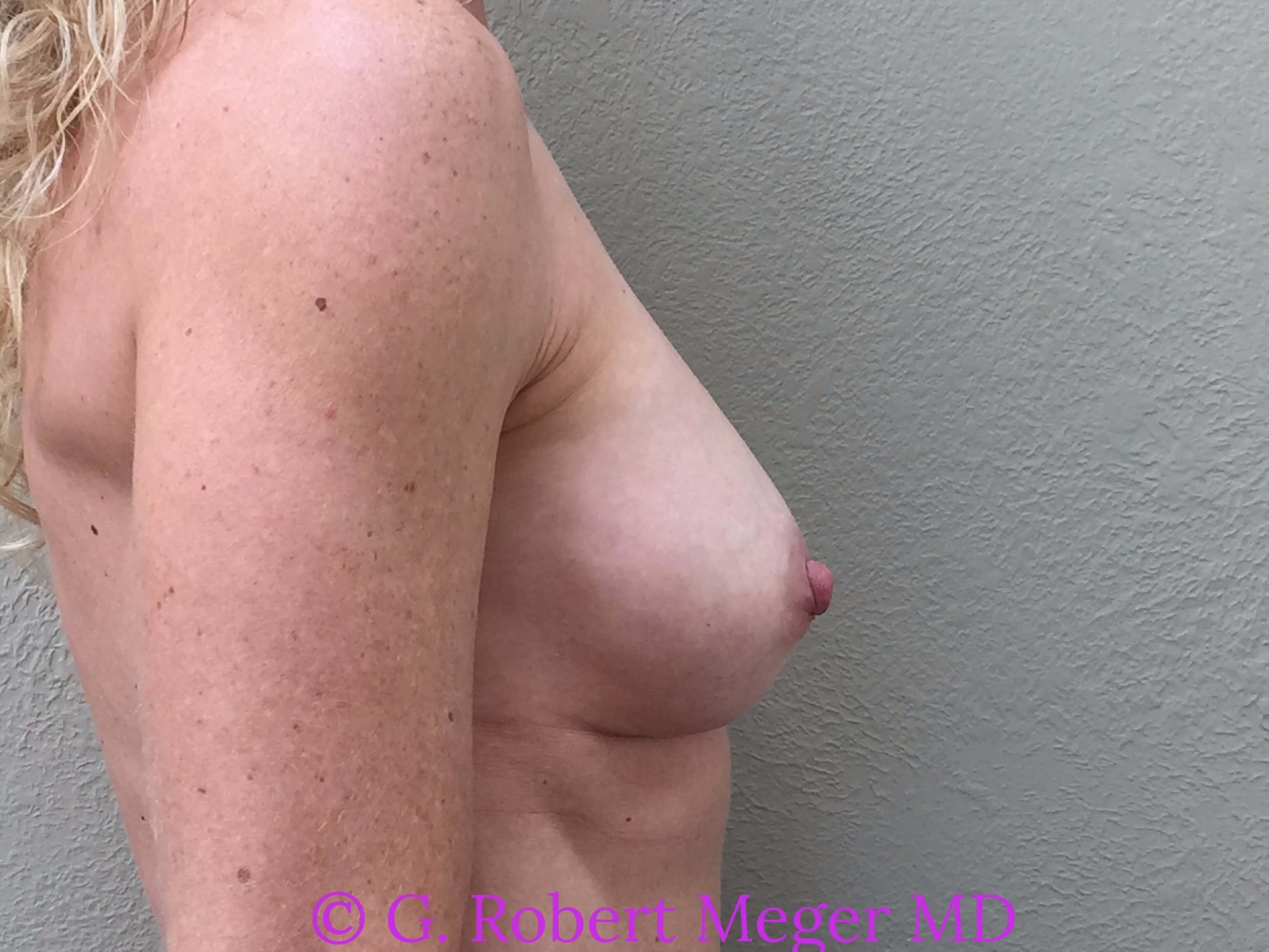 Breast Revision Side View After