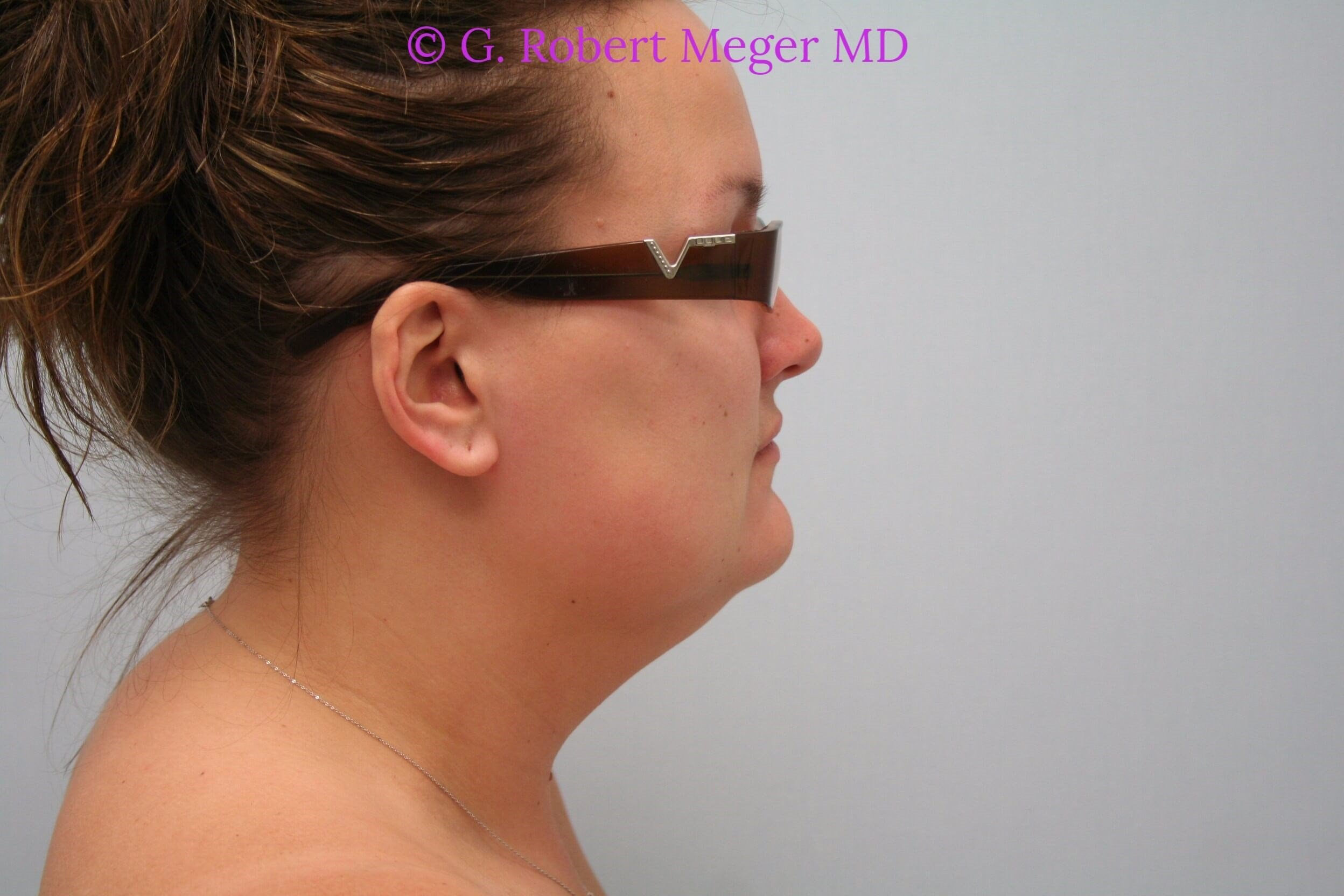 Liposuction Neck Before