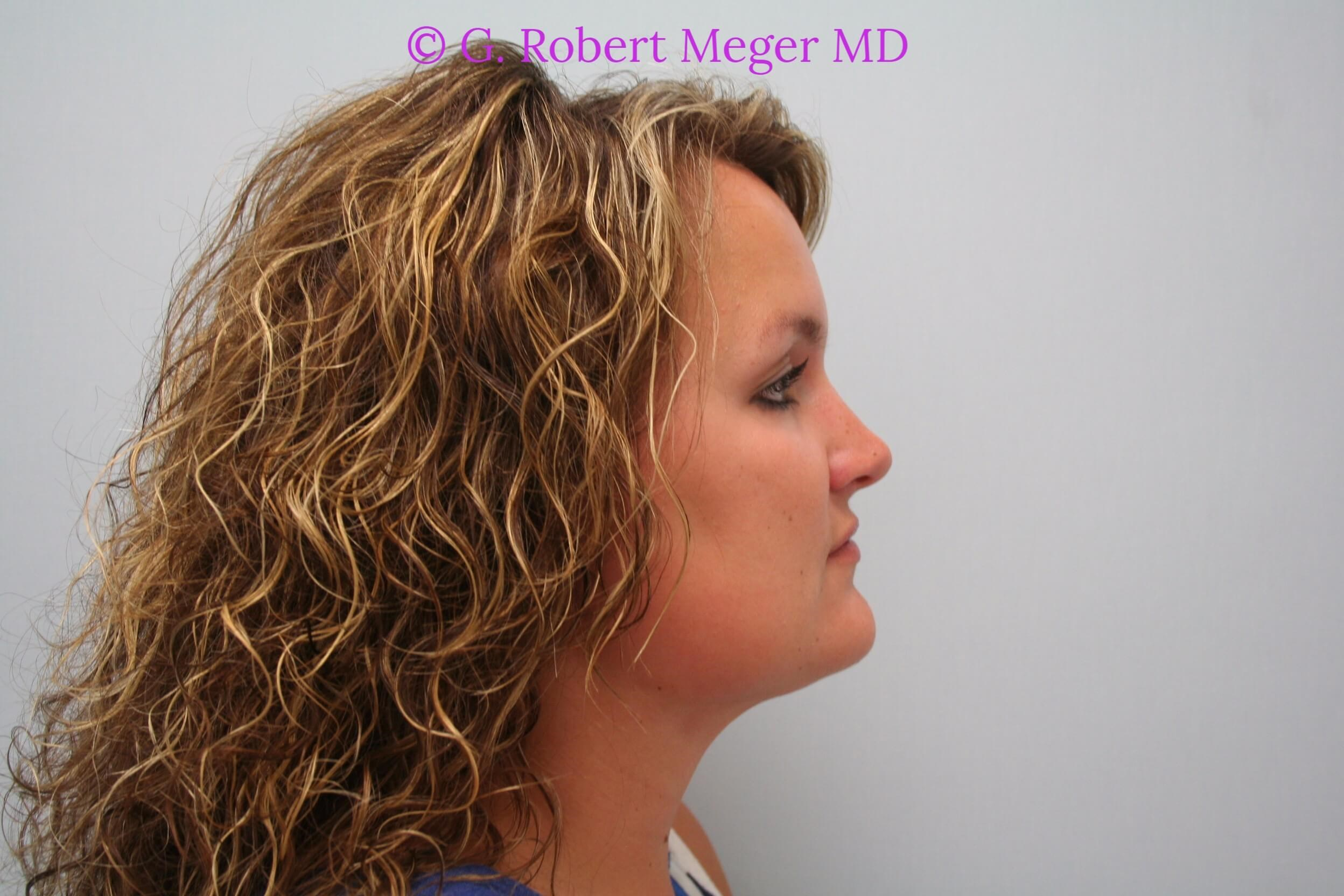 Liposuction Neck After