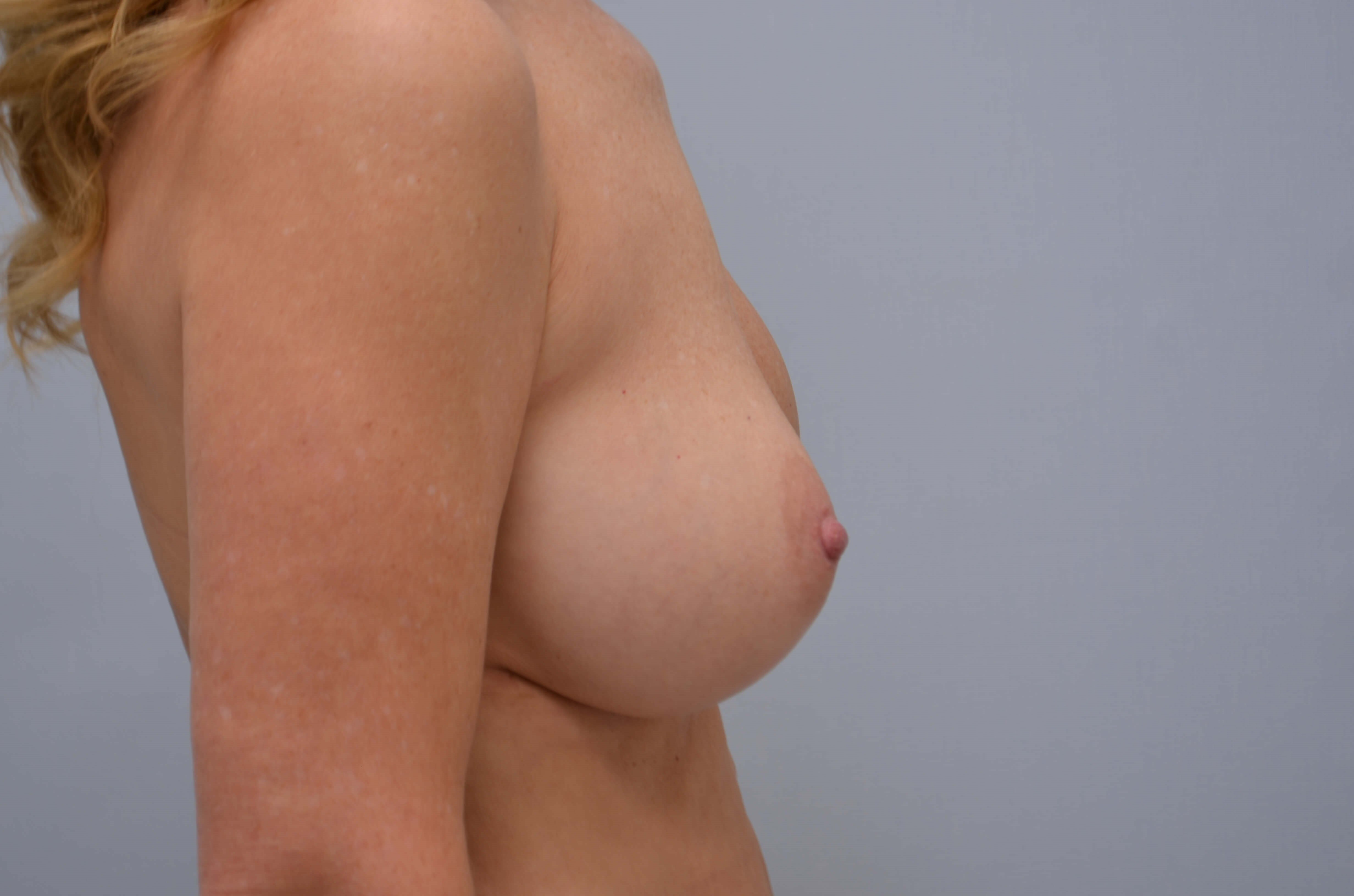 Breast Revision Side View Before