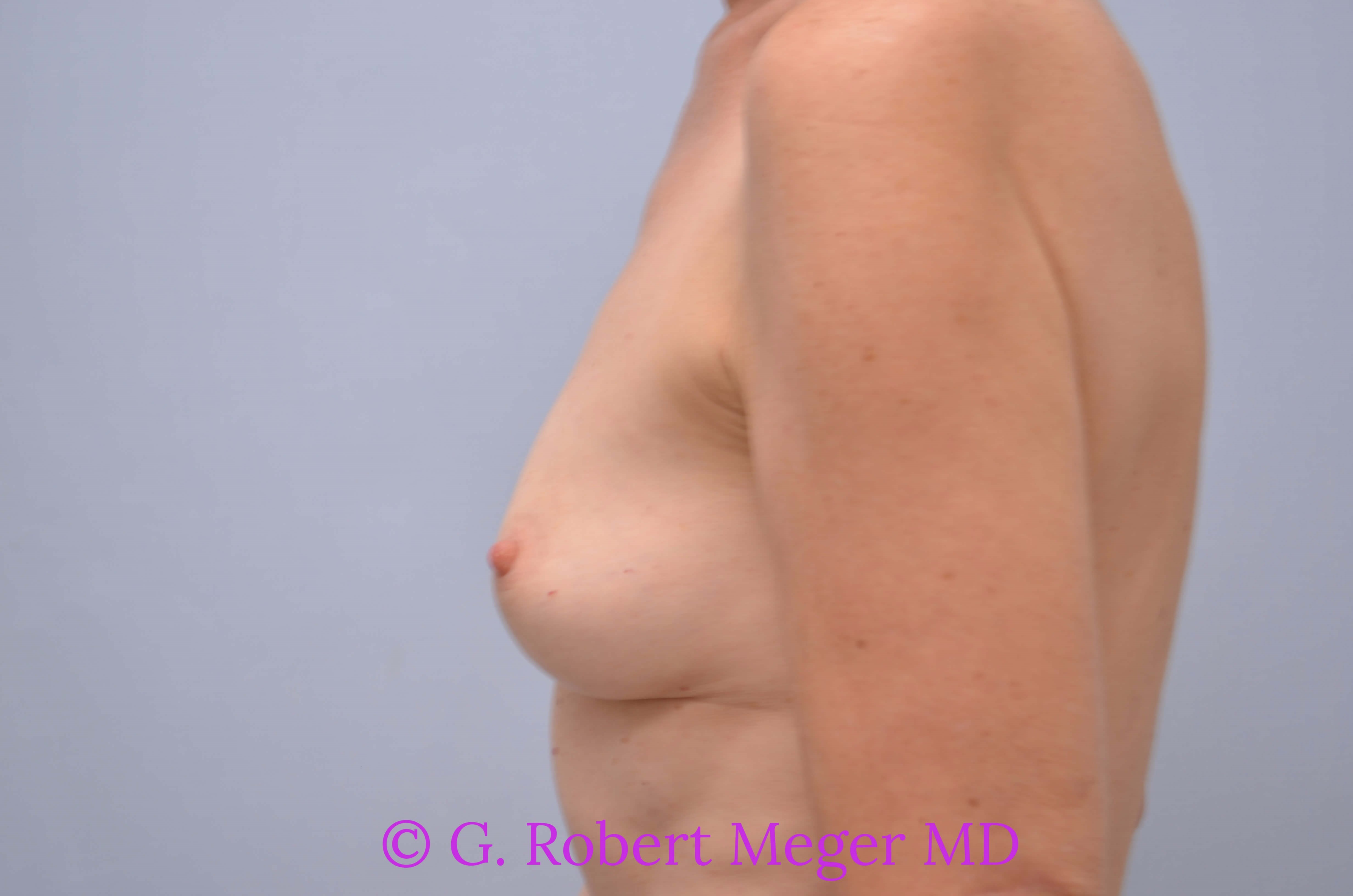 Breast Augmentation Side View Before