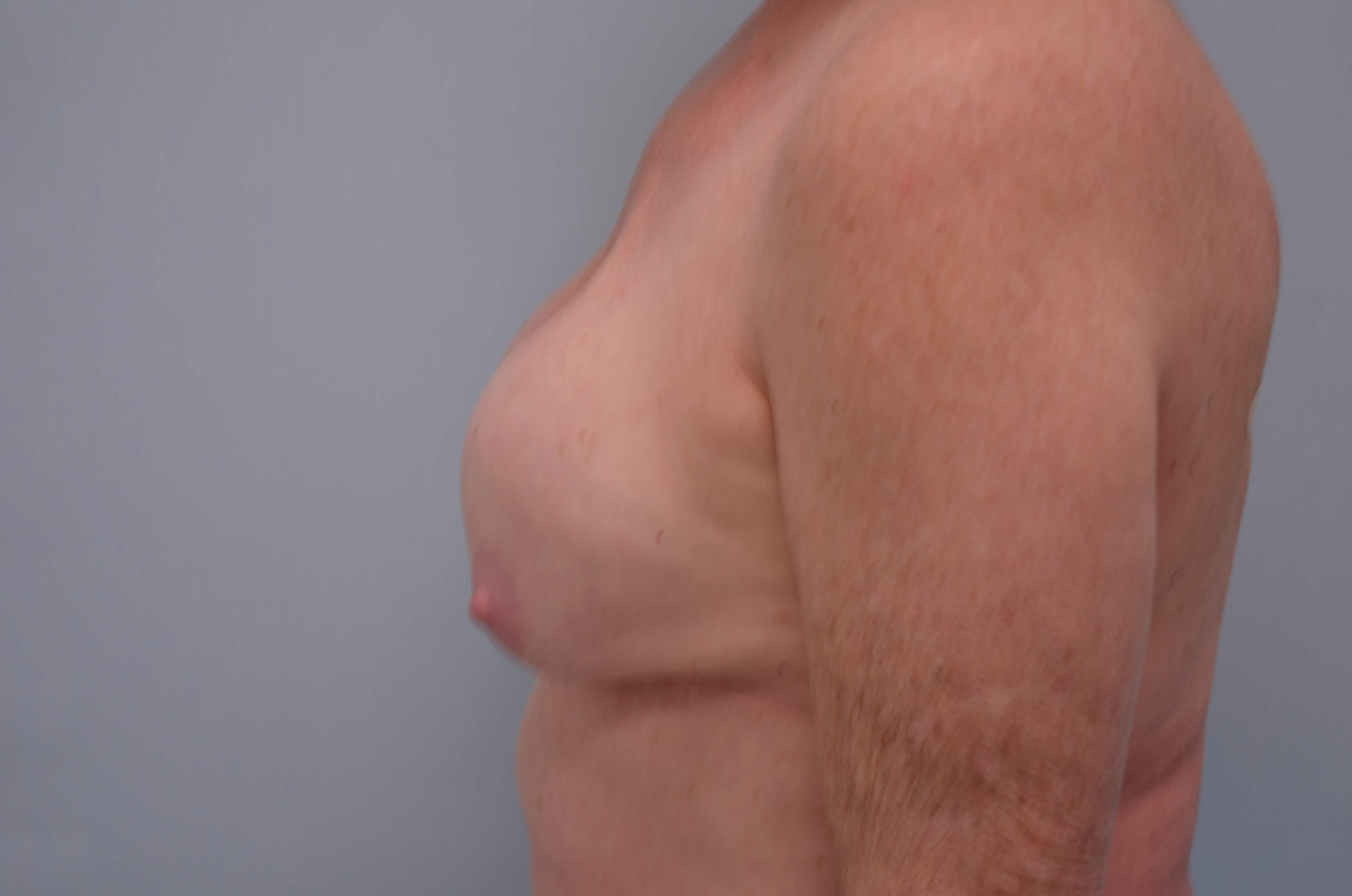 Implant Removal Side View Before