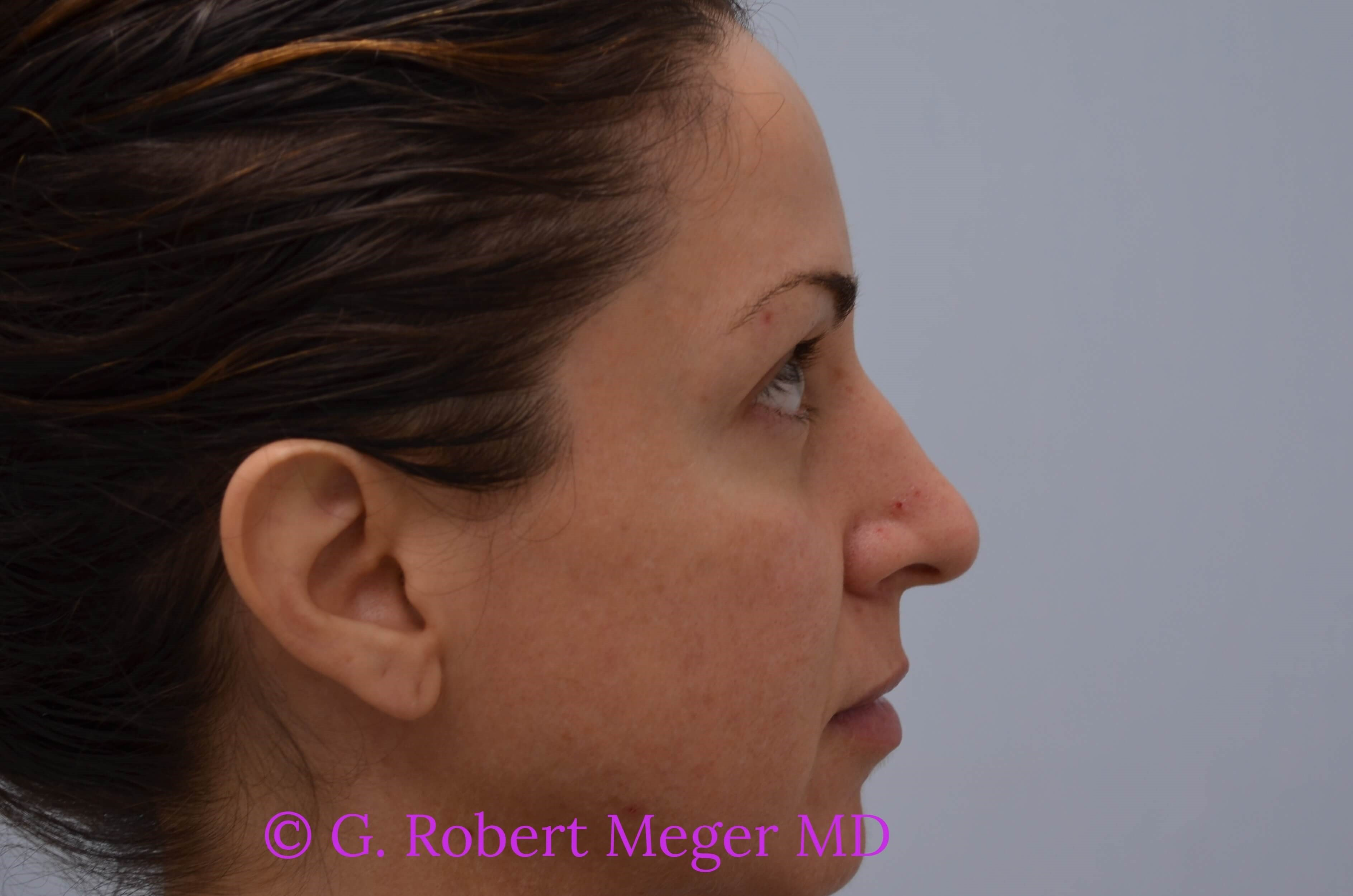 Rhinoplasty Side View Before