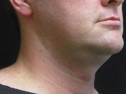 Face tite of the neck and jaw Before