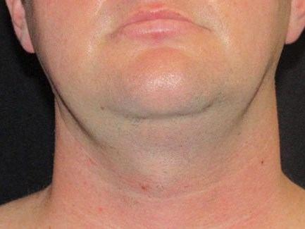 Face tite of neck and jaw Before