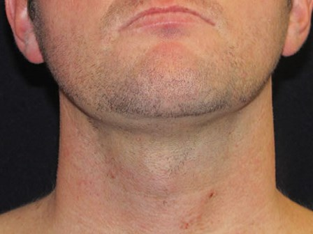 Face tite of neck and jaw After