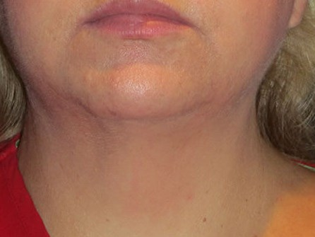 FaceTite of neck in Metairie, La
