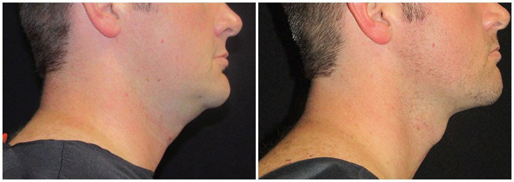 Facetite of neck and jaw Before