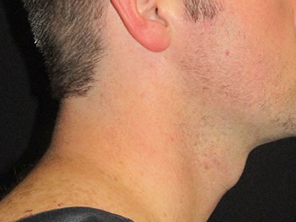 Facetite of neck and jaw After