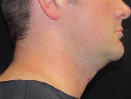 Facetite RFAL of neck and jaw line performed in Metairie, La
