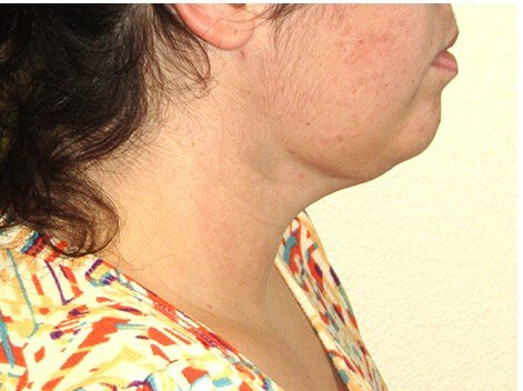 Facetite of neck After