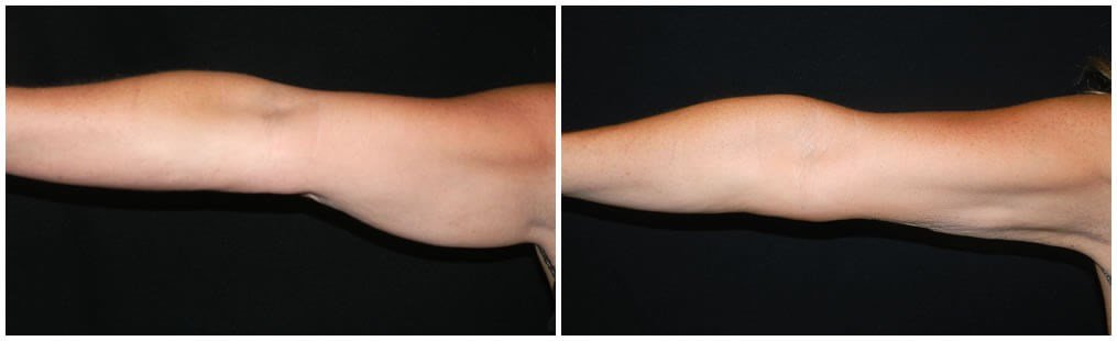 coolsculpting of arms Before