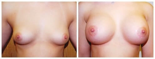 Breast augmentation Metairie Before