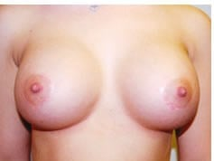 Breast augmentation Metairie After