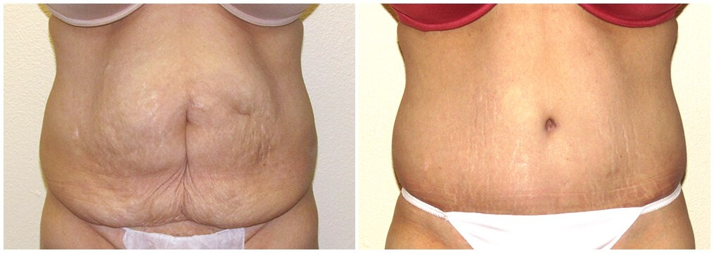 Tummytuck with lipo of hips Before