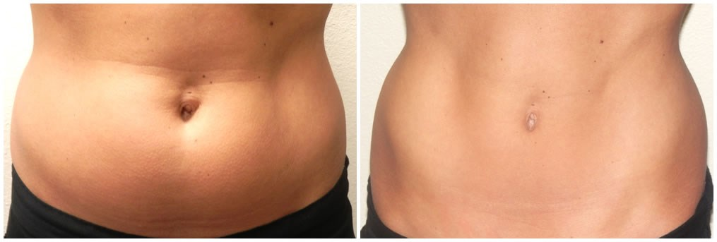 Coolsculpting lower abdomen After