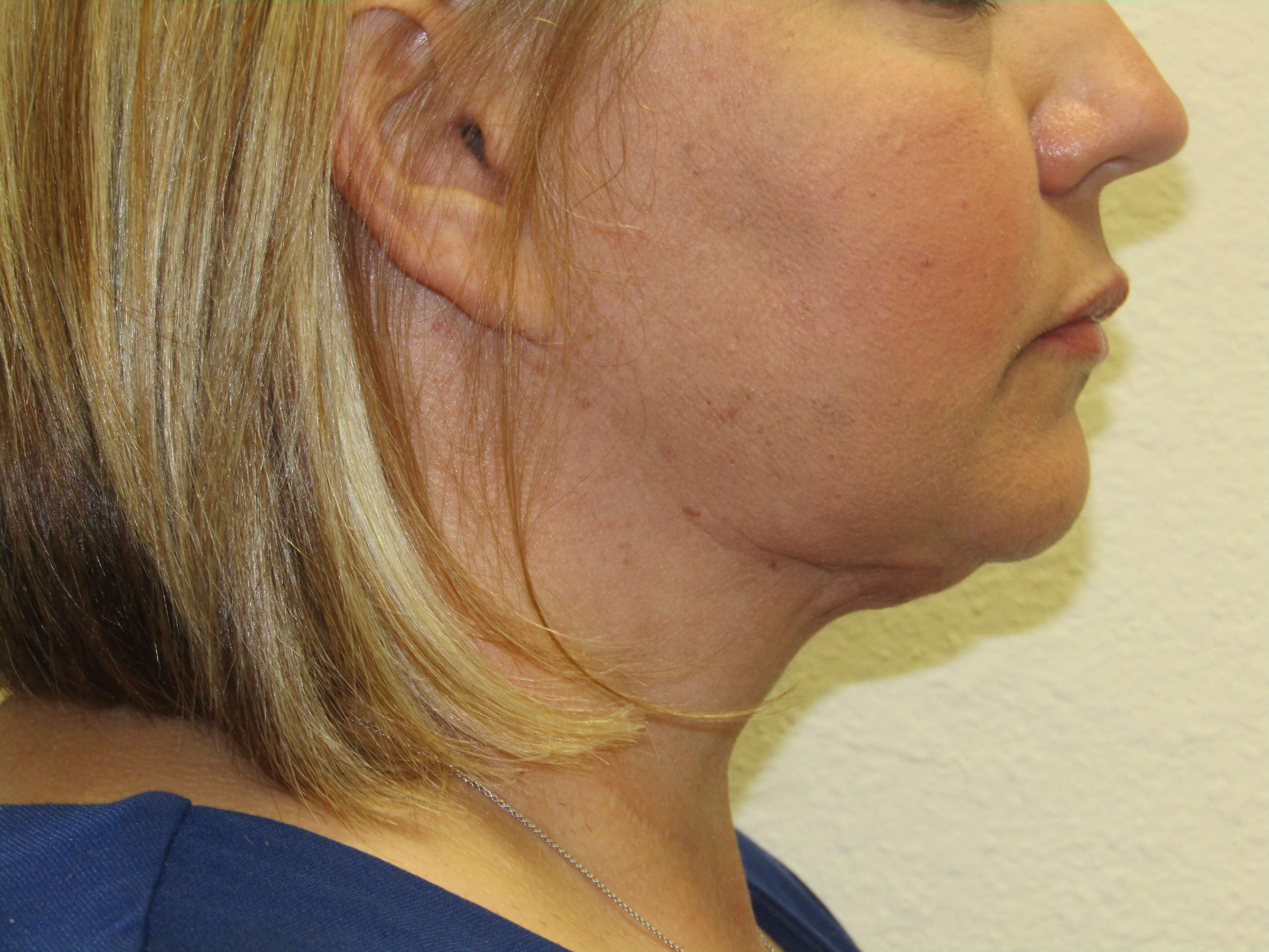 Smartlipo of Neck After