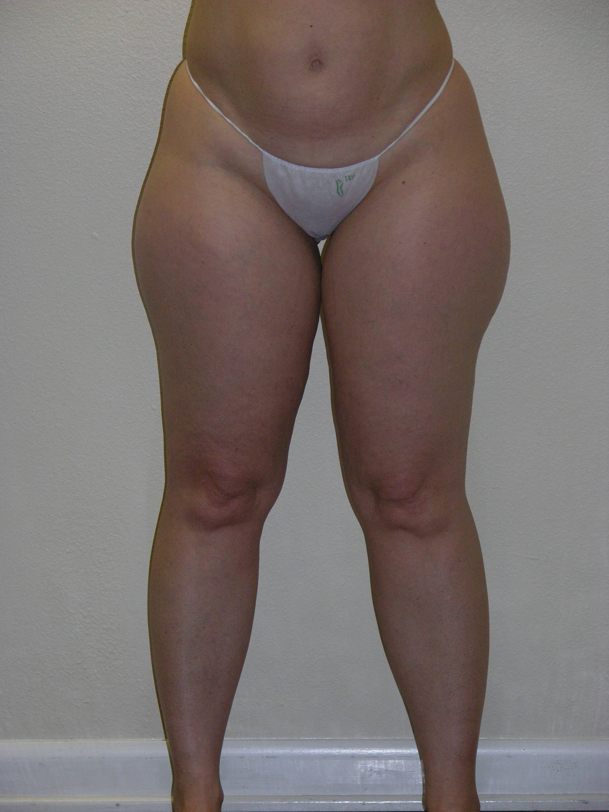 VASER and Smartlipo of thighs Before