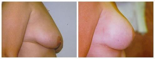 Breast Augmentation / lift After