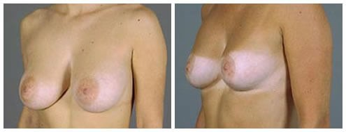 Breast Reduction Lift Before