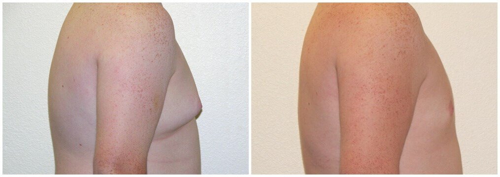 Gynecomastia 1 year after surgery