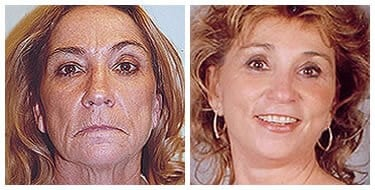 Facelift and necklift After