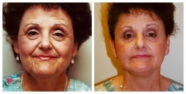 Natural Facelift Before