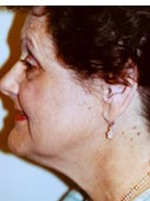 Natural Faceliftt Before