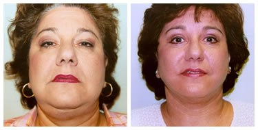 Facelift  Revision After