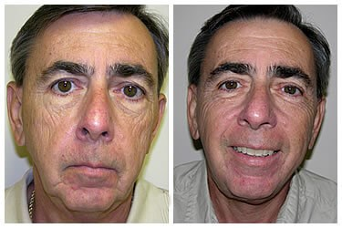 MaleFacelift Before
