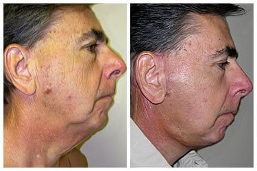 Male Facelift Before