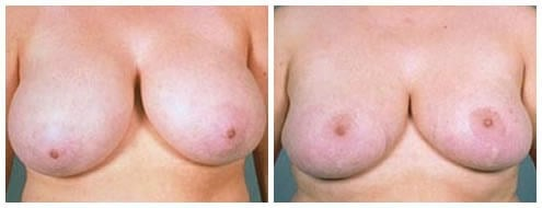 Breast reduction 5 years after Breast Reduction