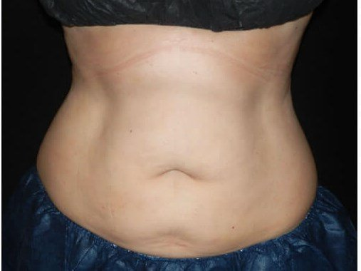 Cool Sculpting After