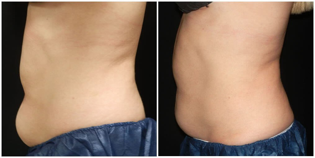 coolsculpting lower abdomen Before