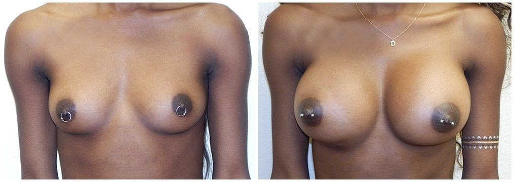 Natural  breast  implants Before