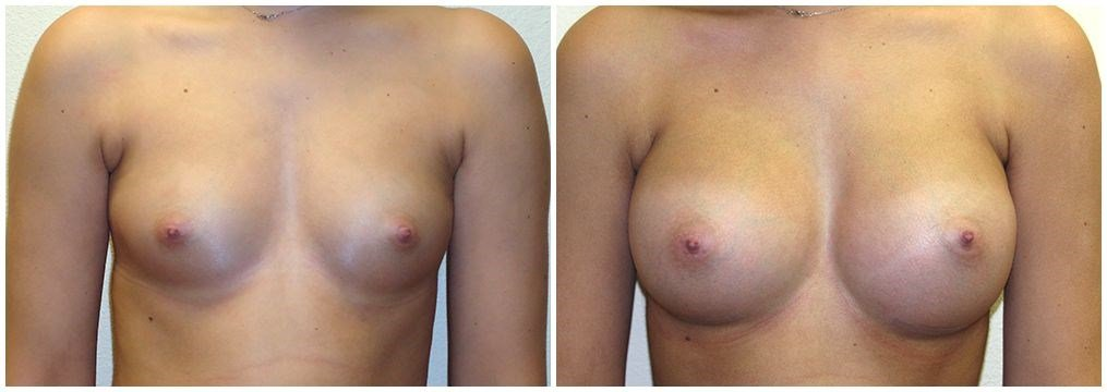 Breast Augmentation with Gummy Before