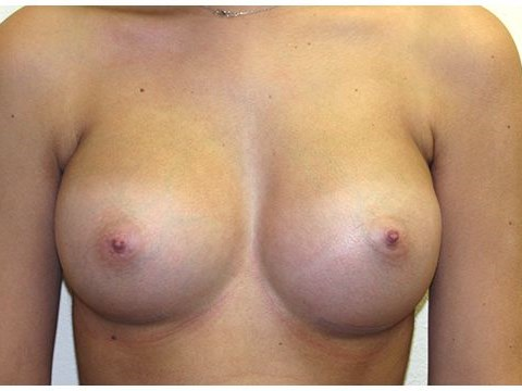 Breast Augmentation with Gummy After