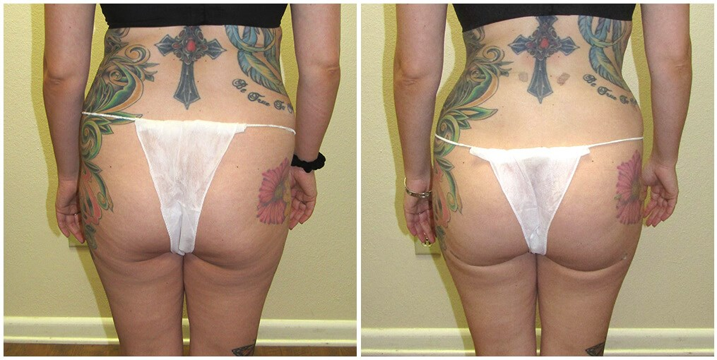 Fat Transfer, Liposuction Before