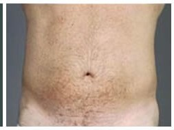 VASER Liposuction of abdomen After